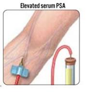PSA – Antigene Prostatico Specifico