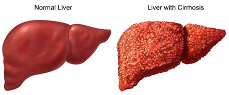 Il thrombophlebitis che promuove lo sviluppo